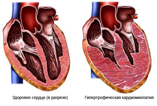 Как лечить дистрофия левого желудочка сердца