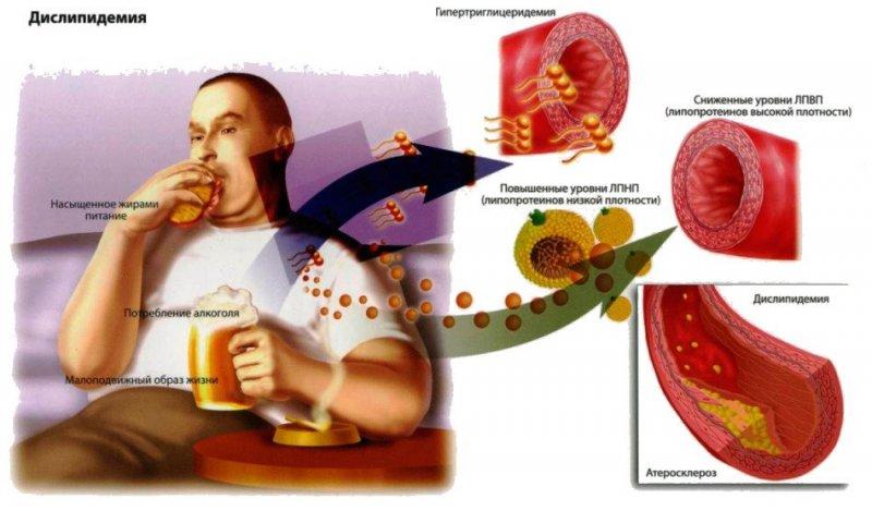 Стенозирующий атеросклероз коронарных артерий классификация thumbnail