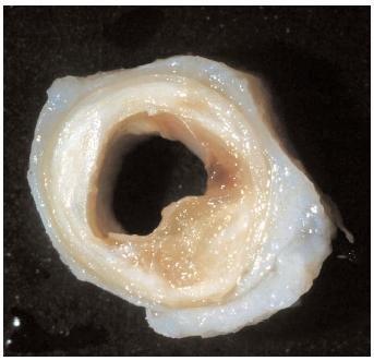 Распространенный атеросклероз коронарных артерий thumbnail